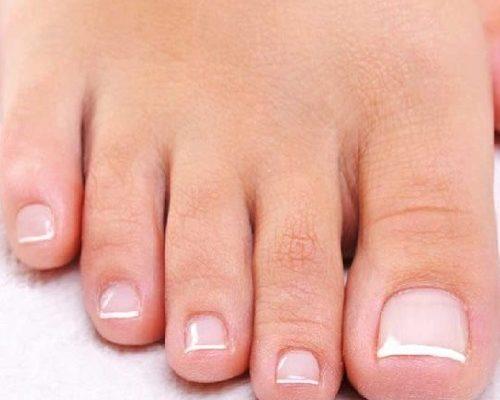 uñas del pie incarnada
