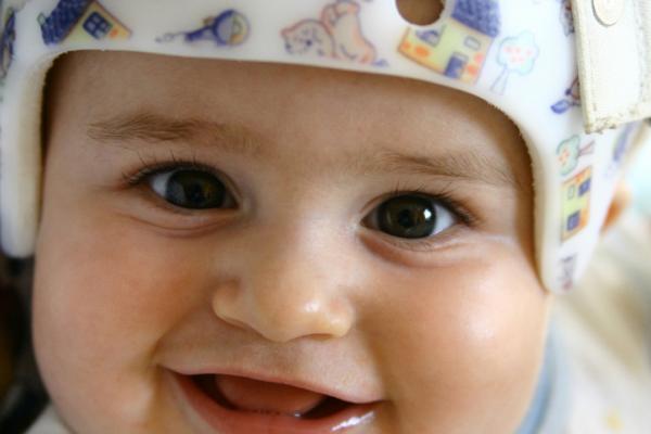 Casco ortopédico para bebé
