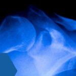 Tratamiento de la rotación de cadera